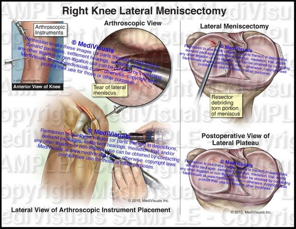 Right Lateral Knee Meniscectomy - #1127