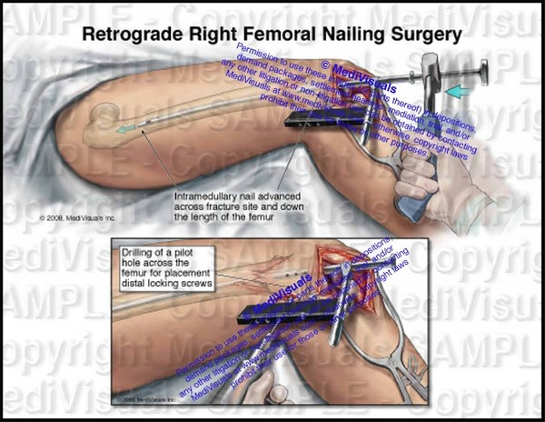 Retrograde Right Femoral Nailing Surgery (Intramedullary rodding) - #1236