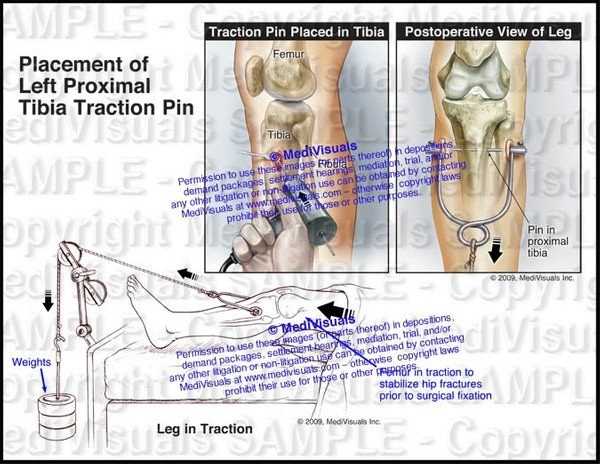 Placement of Left Proximal Tibia Traction Pin - #1137