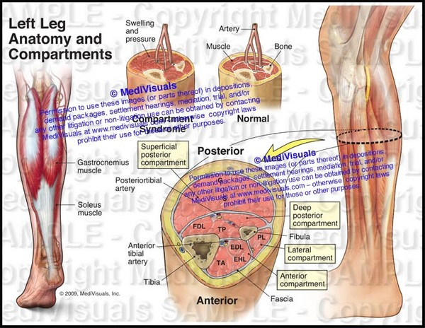 Anatomy and Compartments of the Left Leg  (Compartment Syndrome) - #1131