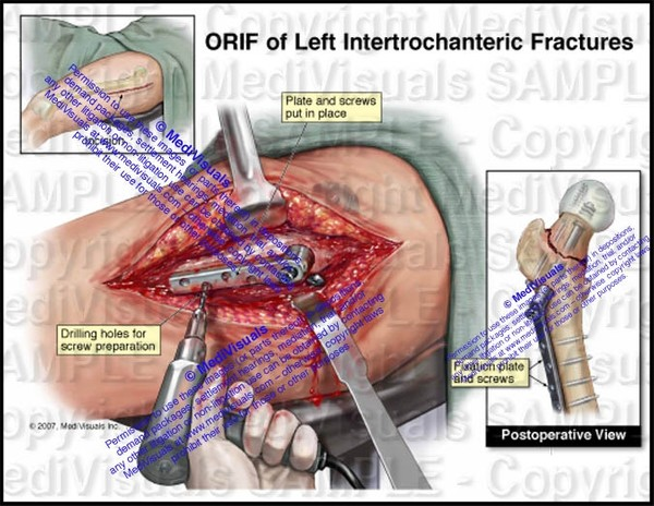 ORIF of Left Hip Fracture - #1231