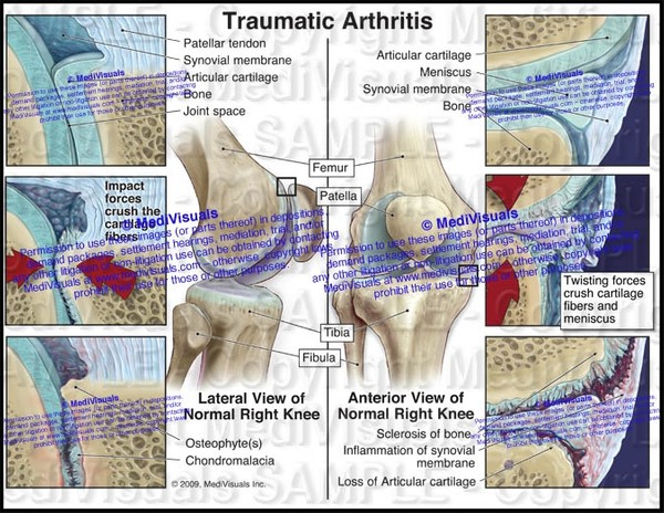 Traumatic Arthritis of  Right Knee and Patellofemoral Joints - #1124R