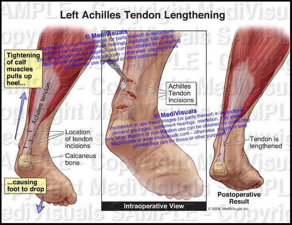 Left Achilles Tendon Lengthening - #1133