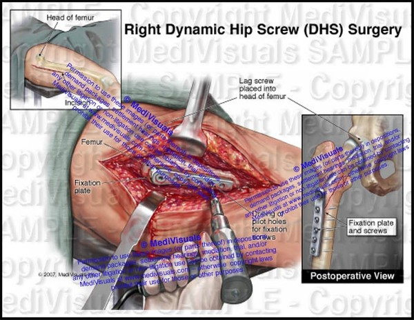 Right Dynamic Hip Screw (DHS) Surgery - #1230
