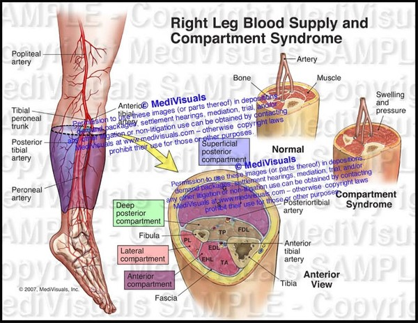 Blood Supply and Compartments in the Right Leg (Compartment Syndrome) - #1130