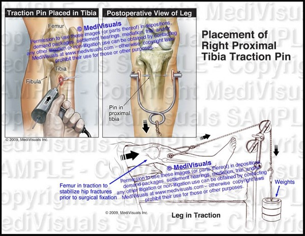 Placement of Right Proximal Tibia Traction Pin - #1138