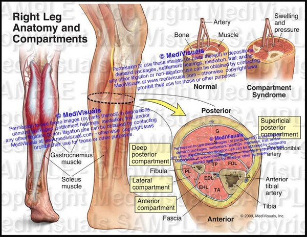 Anatomy and Compartments of the Right Leg (Compartment Syndrome) - #1132