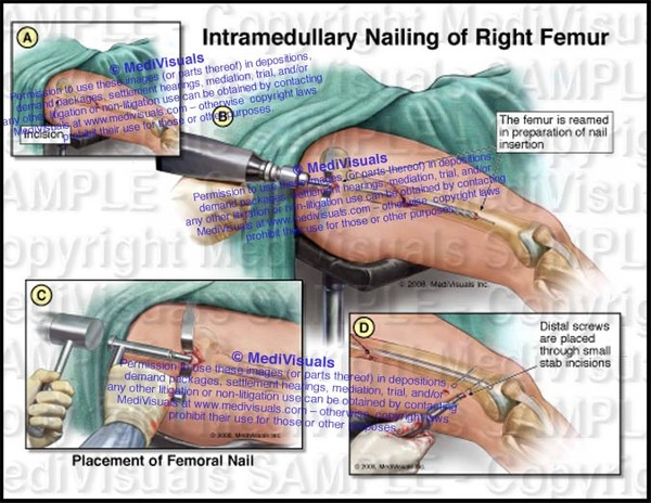 Intramedullary Nailing (Rodding) of Right Femur (Antegrade) - #1234