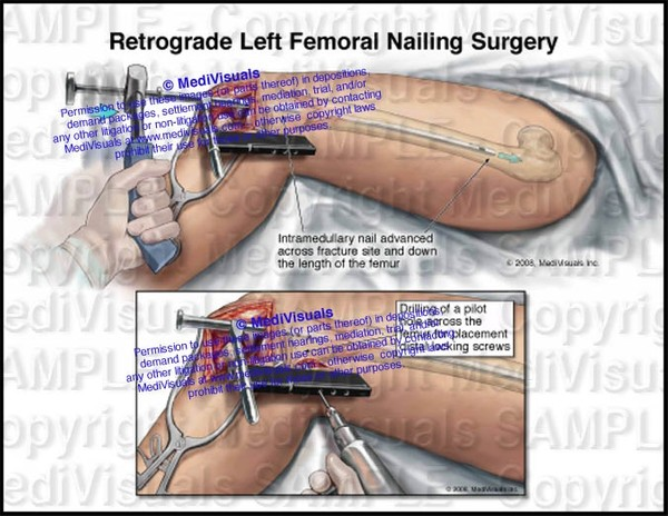 Retrograde Left Femoral Nailing Surgery (Intramedullary rodding) - #1235