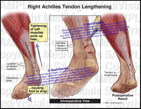 Right Achilles Tendon Lengthening - #1134