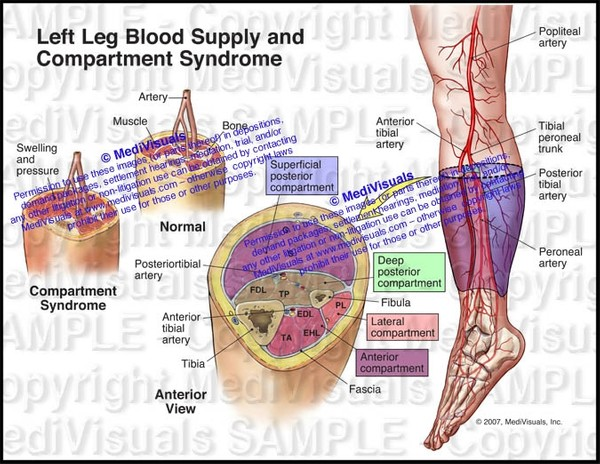 Blood Supply and Compartments in the Left Leg (Compartment Syndrome) - #1129