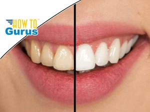 Photoshop Elements Whiten Teeth : Give your smile brighter teeth : a 15 14 13 12 11 Tutorial