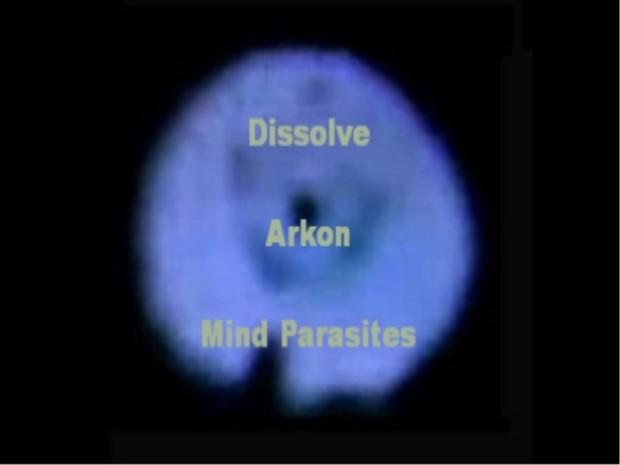 Archon Mind Parasites MP3