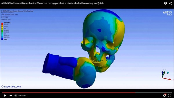 ANSYS Workbench 15.0 MECHDAT file and 3D model for skull with mouthguard