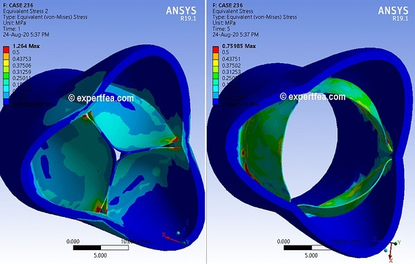 ANSYS  Workbench 19.1 Mechdat file and 3D model for aorta structural