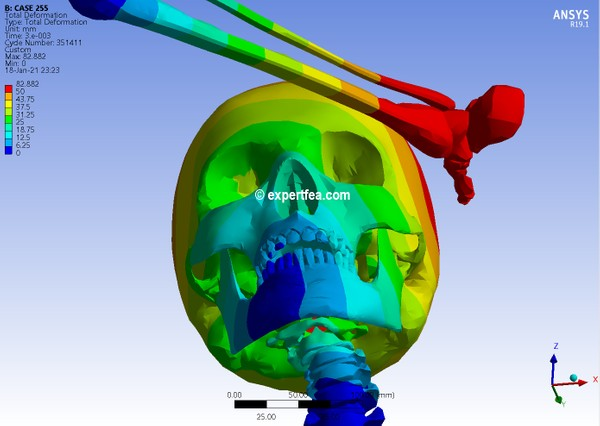 ANSYS  Workbench 19.1 Mechdat file and 3D model for leg-head-spine kick