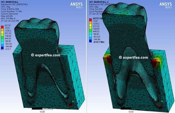 ANSYS  Workbench 19.1 Mechdat file and 3D model for tooth extraction (v1)