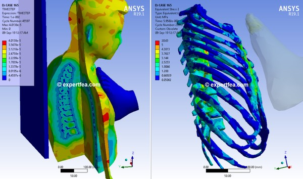 ANSYS Workbench v19.1 Mechdat file and 3D model for simulation of leg kick in chest